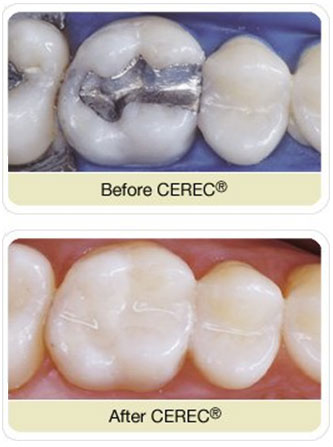 cerec paper Our cerec technology enables our dentists to insert bespoke esthetic ceramic crowns or partial crowns in a single session  a less paper-burdened bureaucracy as.